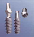 NobelActive internal and external implant systems